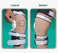 e9c62d4ef0 In the conservative management of osteoarthrosis of knee, NOA has once  again introduced yet another innovation in the name and form of